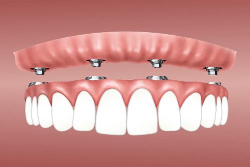 Dental implants mt druitt Dentist NSW