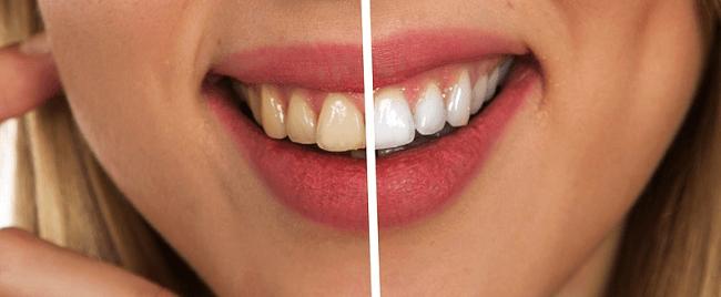 Is laser whitening safe for your teeth Mt Druitt NSW Dentist