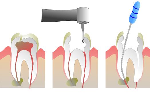 Root Canal Treatment Mt Druitt Dentist