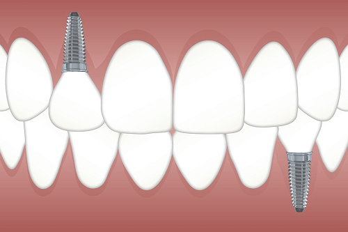 Best Looking Tooth replacement mt druitt NSW